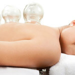 cupping therapie foto