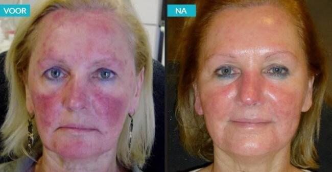 Laat uw huid weer stralen