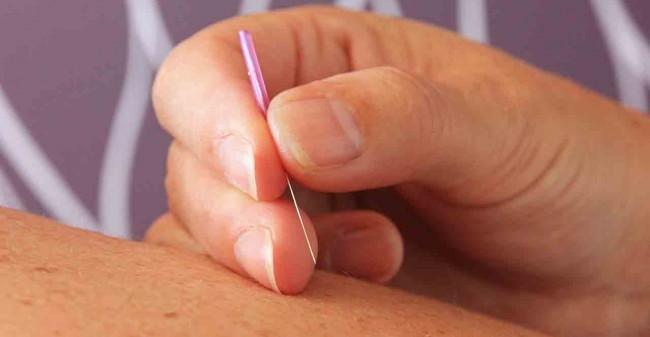 Uit balans?  Acupunctuur helpt