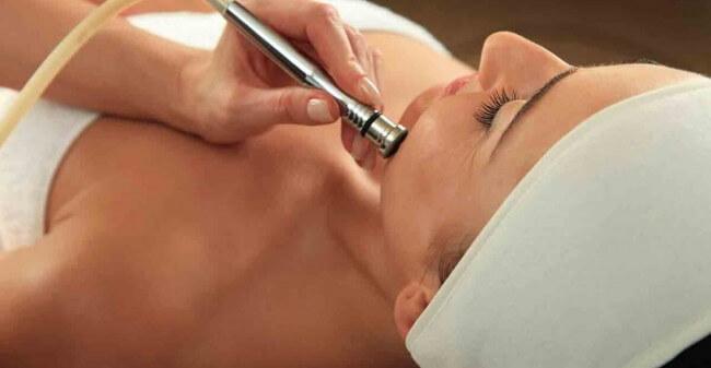 Microdermabrasie voor een frisse huid