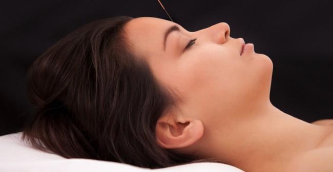 Verbeter je vruchtbaarheid met acupunctuur