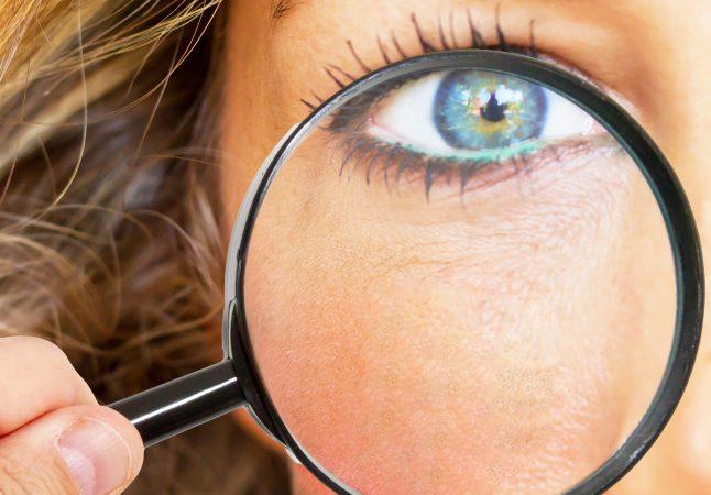 Alles wat je wilt weten over pigmentvlekken
