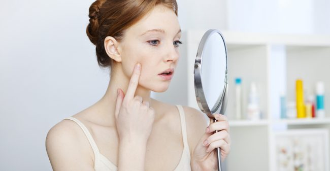 'Ik stoorde me enorm aan mijn acne'