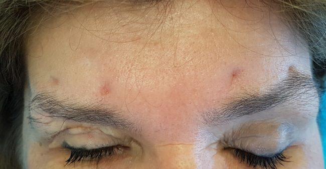 Wat te doen met lelijke littekens?